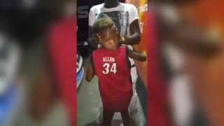 Chlapček dokáže otočiť hlavu ako v Exorcistovi