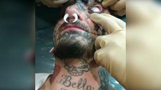 Čo takto tetovanie očnej buľvy?