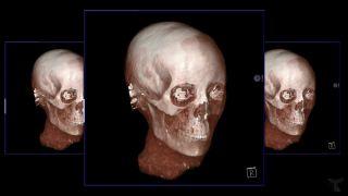 Rekonštrukcia tváre 2000-ročnej múmie ženy
