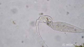 Mikroskopický súboj o život