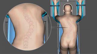 Operácia skoliotickej chrbtice - detailná animácia